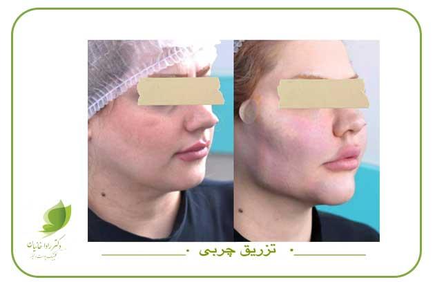 تزریق چربی و نانوفت زیر چشم در مطب دکتر رادا خانیان