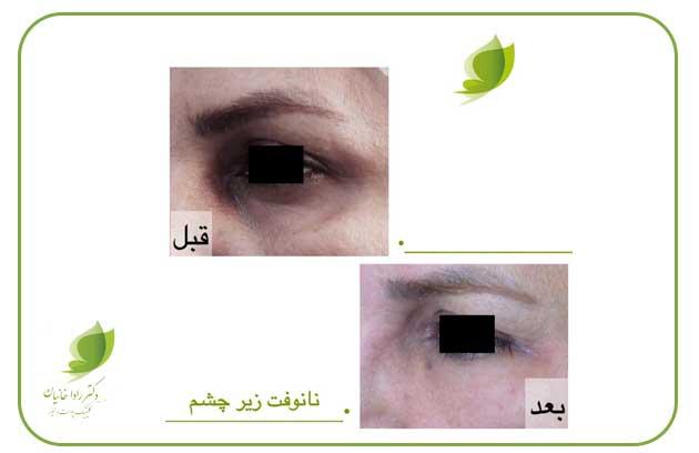نانوفت زیر چشم در مطب دکتر رادا خانیان