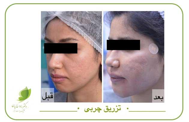 تزریق چربی کل صورت در مطب دکتر رادا خانیان