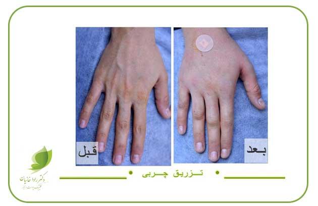 تزریق چربی به دستها در مطب دکتر رادا خانیان