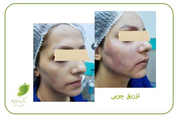 تزریق چربی صورت در مطب دکتر رادا خانیان